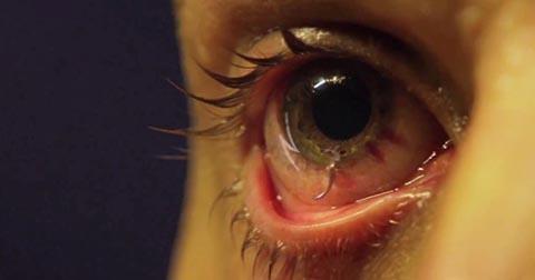 prometheus_eye